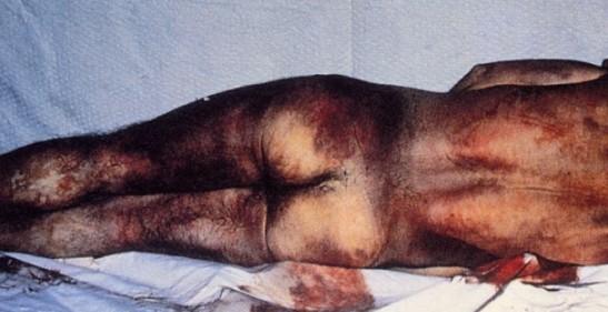 3038. España - Un informe recoge 5.022 casos de torturas policiales en el País Vasco